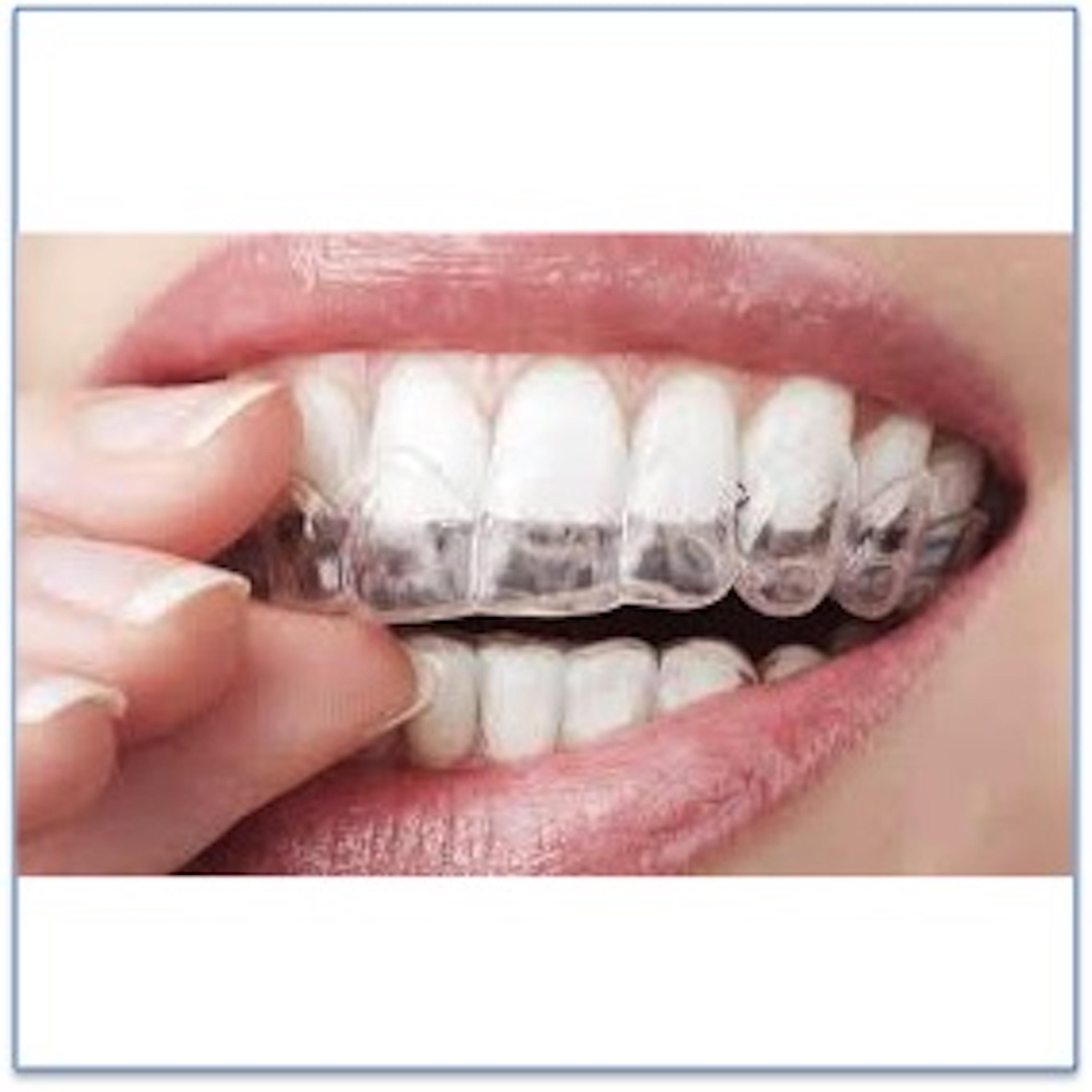 Clareamento Externo Caseiro Pelisser Odontologia